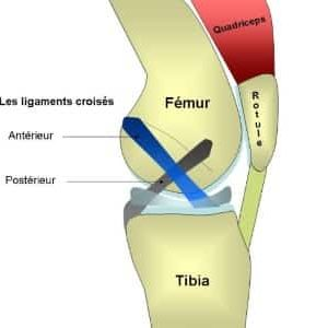 Rupture ligament croisé